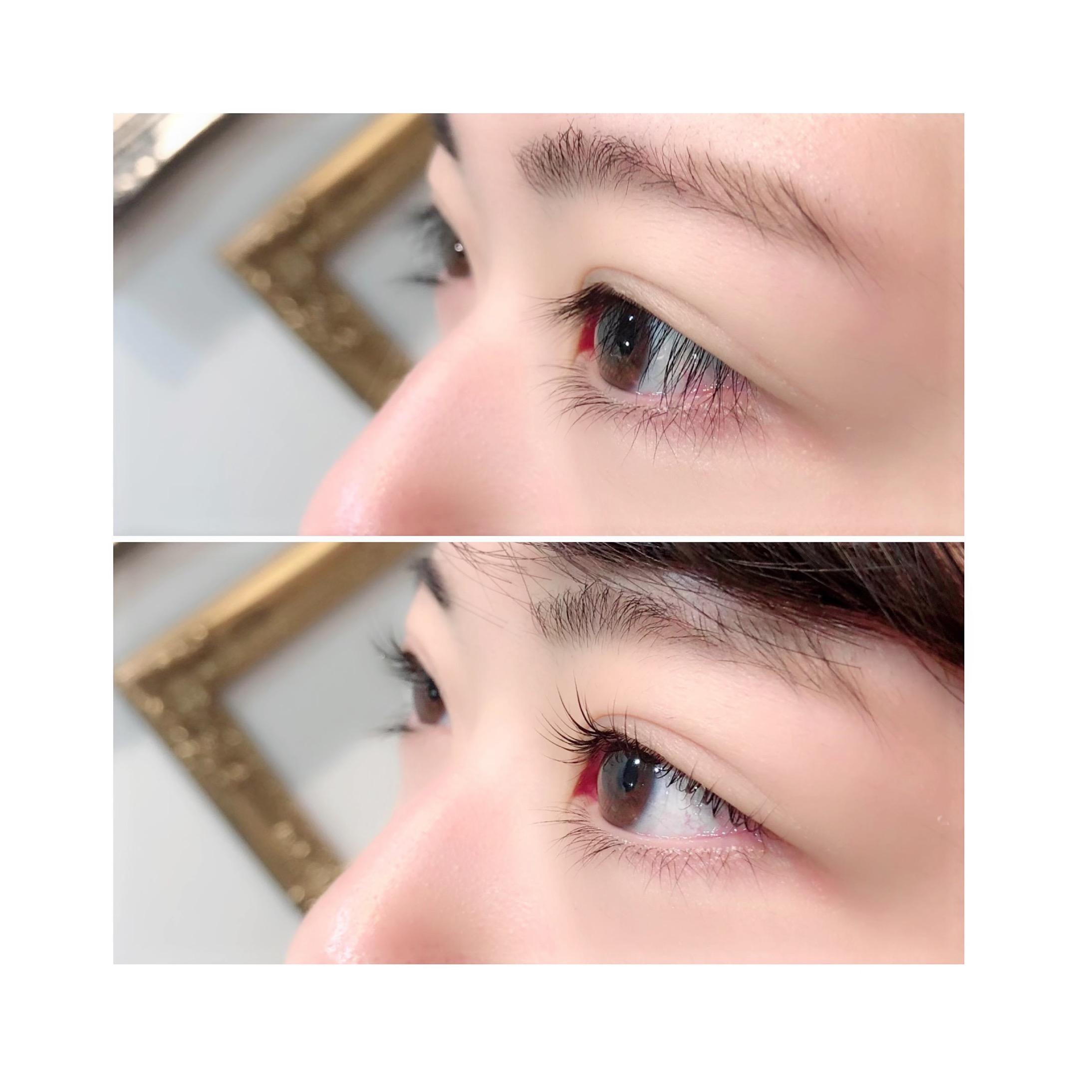 視界スッキリ✨